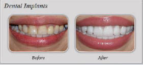 Dental implants near Canoga Park