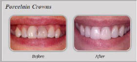 Dental crowns near Fern Ann Falls