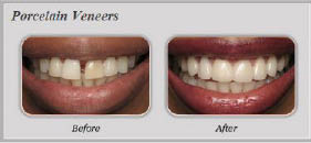 Porcelain veneers near Northridge, CA