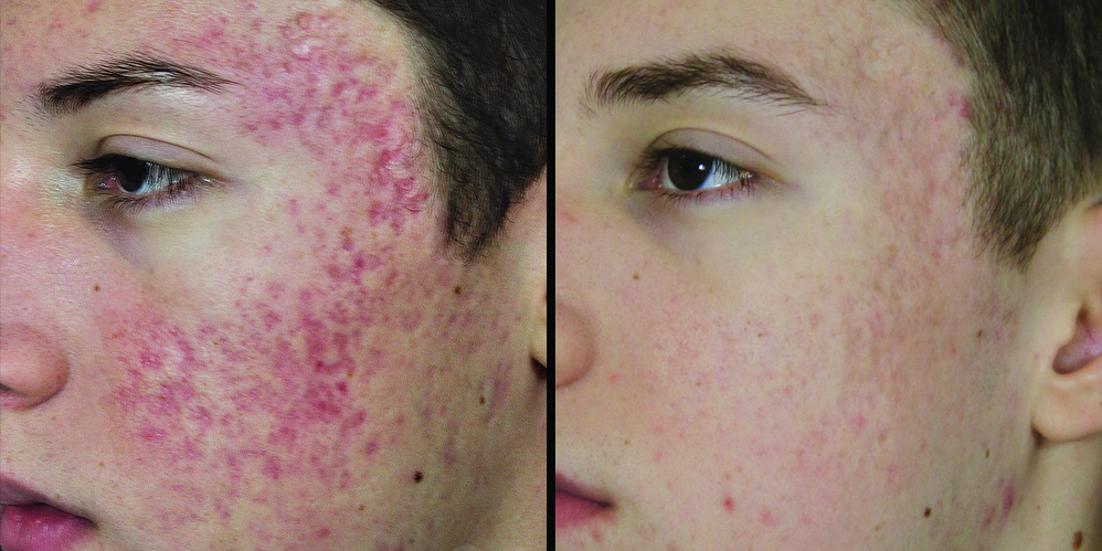Intense Pulsed Light Sculptra Skin treatment fix my acne scars