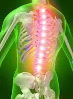 Longo Chiropractic Deep Tissue Laser Center back pain near Greenfield, WI