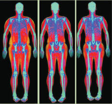 X-Ray results to help discover broken bones