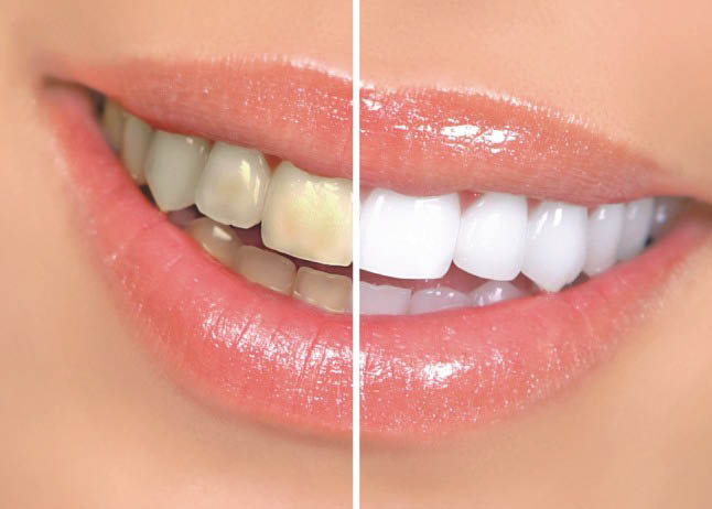 teeth whitening coupons near me teeth whitening coupons in mission viejo ca teeth whitening coupons mission viejo mall