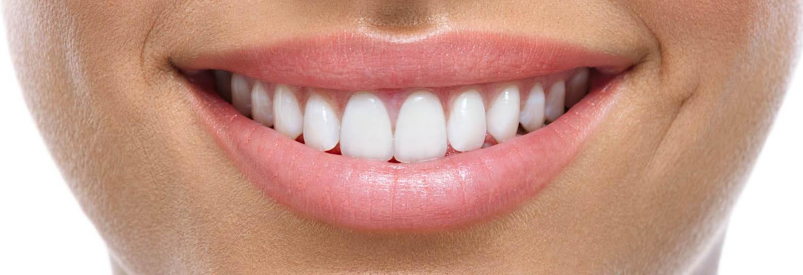 model dental smile photo
