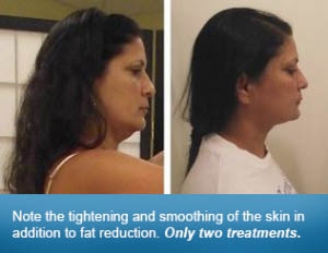 Picture of Faces Before & After UltraSlim Fat Loss System
