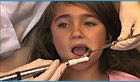 Teeth Cleaning & Cavity Prevention Services