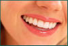 Advanced teeth whitening services near Santa Monica