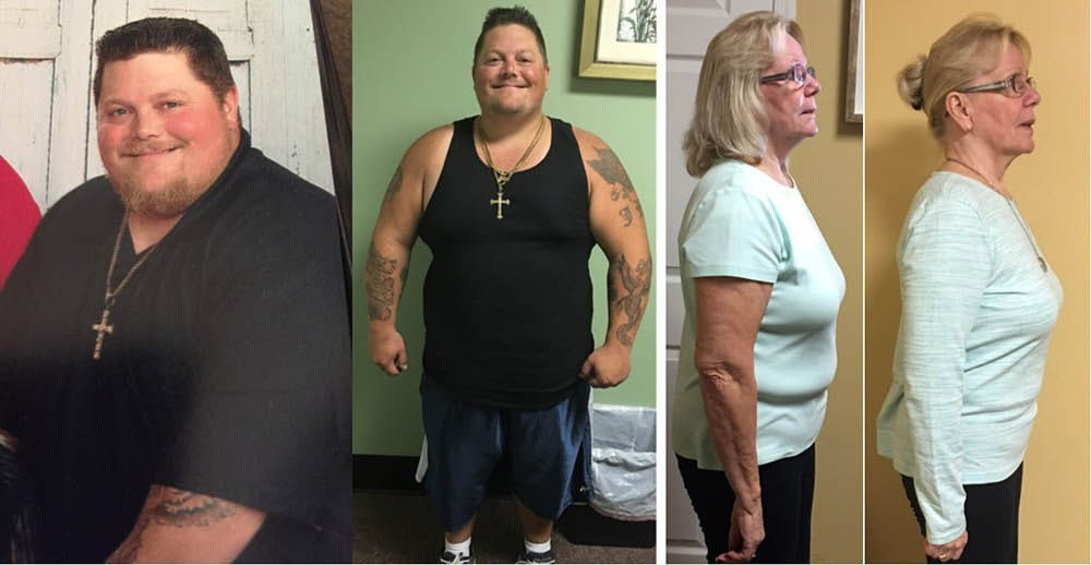Before-&-After-Weight-Loss-