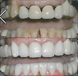 Before and after photos dental teeth whitening; teeth straightening; braces; invisalign