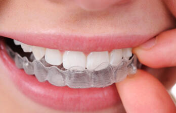 Invisalign braces offered at our Morrow, CA location