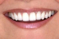 Visit Dr. Millard Roth, DDS provides zoom teeth whitening for the best teeth whitening in Laguna Hills, CA.