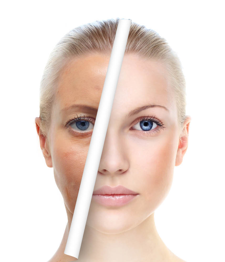 Perfect Skin Laser Center, Tempe, AZ, health, wellness Diamond BOTOX®