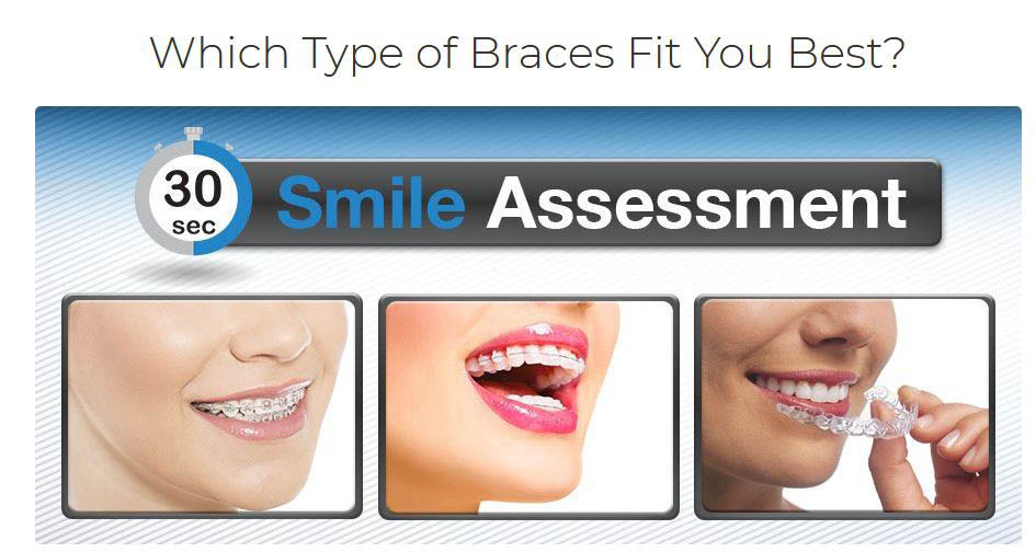 Dental invisible braces, best braces for adults, cost of clear braces, clear braces price, clear