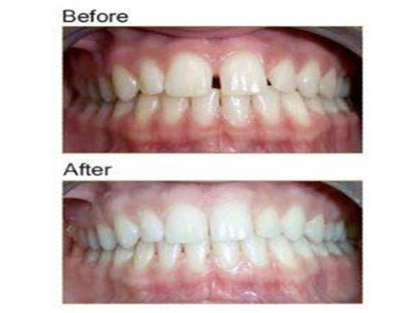 Reynoldsburg Dental Associates before and after care