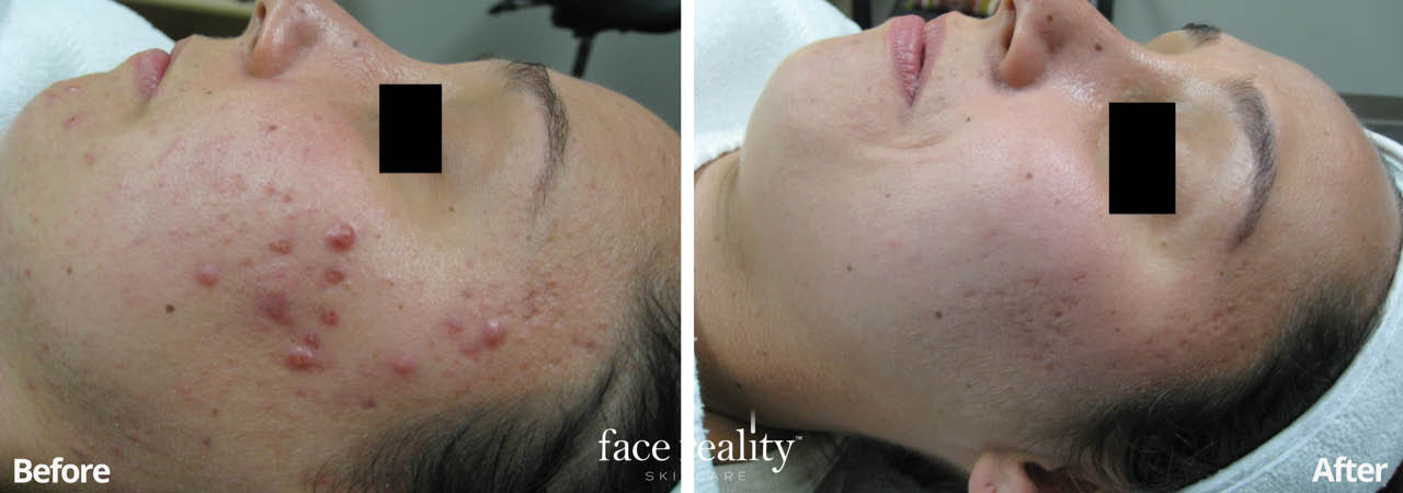 Acne Program Coupons, Deluxe Facial Coupons, Micro Needling Coupons, Facial Coupons, Skin Care Coupons