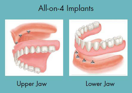 dental implants upper teeth where can i get cheap dental implants complete teeth replacement