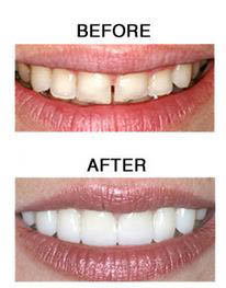 Before and after teeth whitening near Arlington estates
