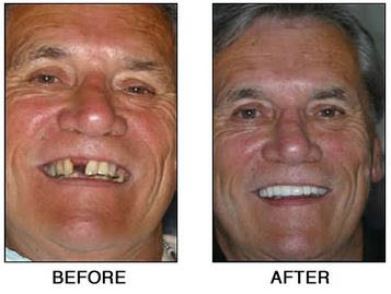Tooth implant cosmetic dentistry deals near Yacht Cove