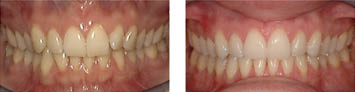 Gorczyca Orthodontist Antioch, CA; Before and after from Invisalign treatment