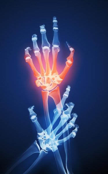 Osteoporosis Healing Process