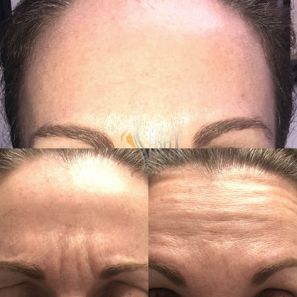 Facial fillers, Cellulite removal, wrinkle reduction, botox, Body Contouring,strax rejuvenation