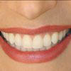 Refreshen your smile with Veneers
