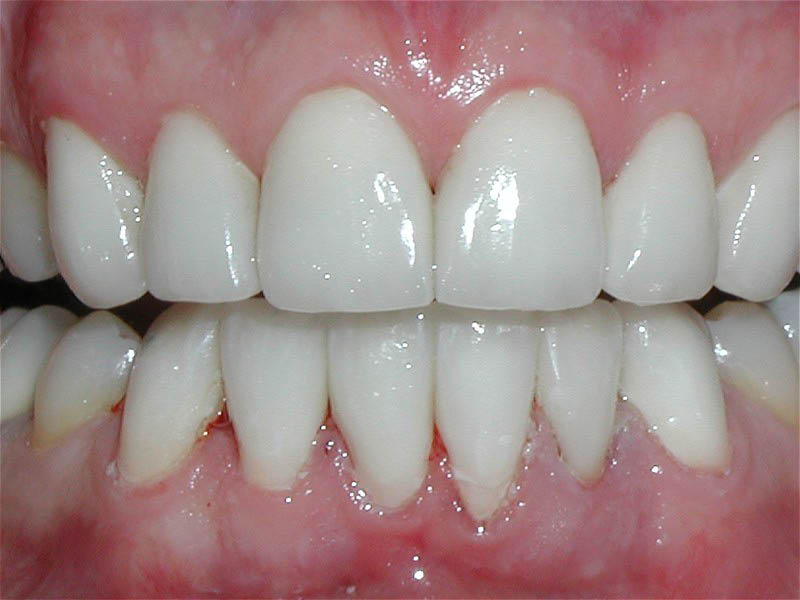 Dr. Dapper is an expert Teeth Whitening Dentist in San Clemente
