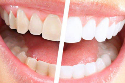 Yellow smoked stained teeth can be bright white again.