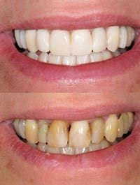 Teeth whitening, cosmetic dentistry near Chesterfield, MO