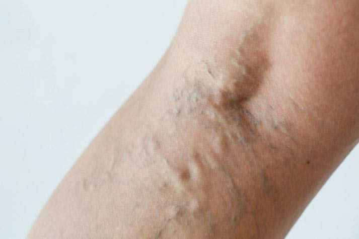 The vein clinic coupons, Varicose vein removal coupons, venacure laser treatment coupons.