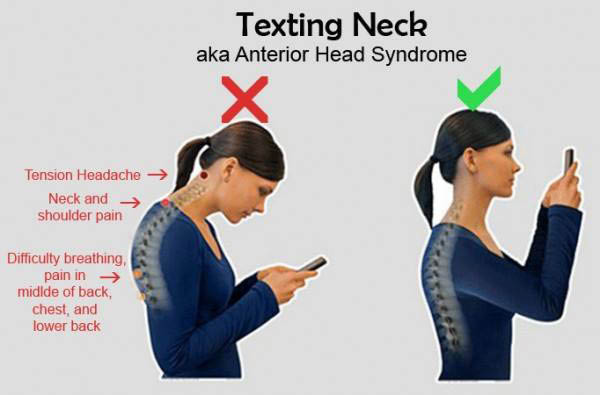 Proper posture for anterior head syndrome