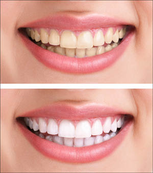 Teeth whitening near Woodridge, IL