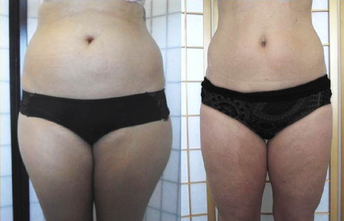 Before & After UltraSlim Treatment Picture