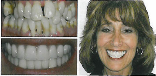 Before and After teeth whitening. What a dazzling difference!