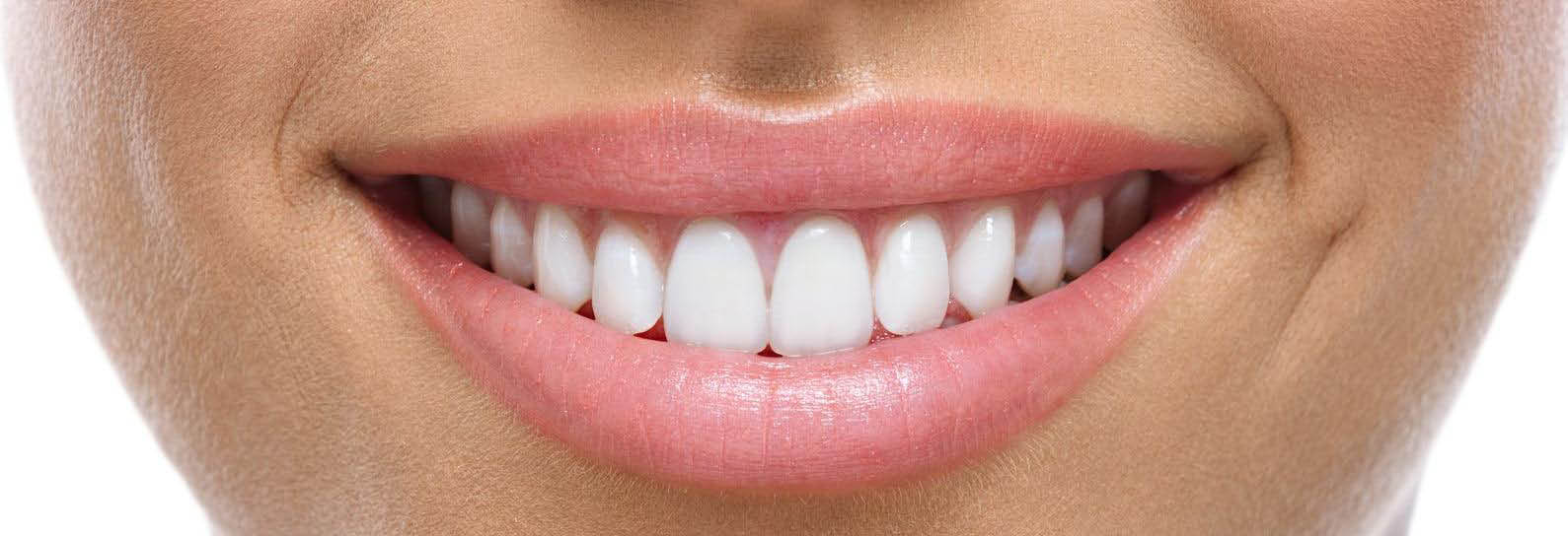 Get a white teeth smile at Westwood Family Dental banner