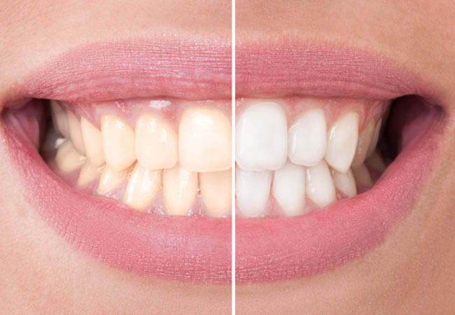 At-Home-Teeth-Whitening-Kits
