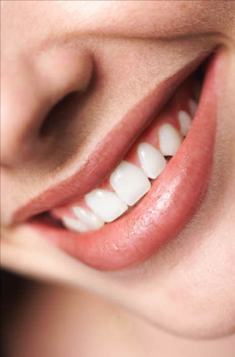Winnie Young, DDS offers teeth whitening dental care services