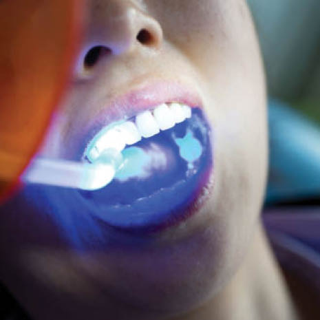 Cosmetic teeth bonding and white fillings enhance your smile
