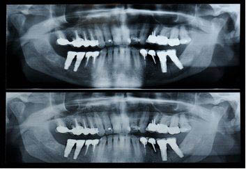 dental x-rays; montgomery dental associates located in rockville, maryland