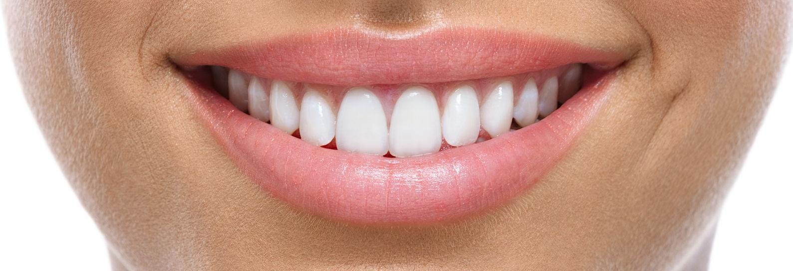 smile, dental, cleaning, crown